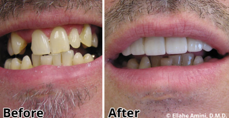Bridge and Veneers