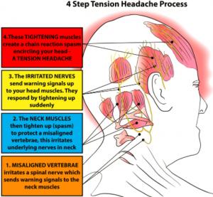 Tension Headaches Dr Amini